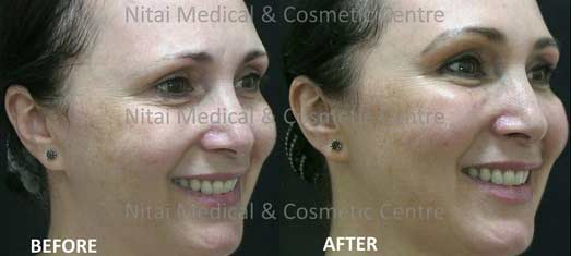 cheek-dermal-fillers-before-and-after-002