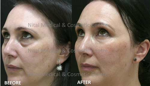 Before & Afters | Dermal Fillers Melbourne