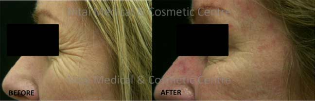crows-feet-dermal-fillers-before-and-after-002