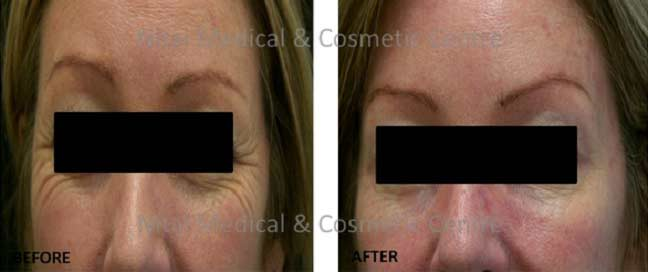 crows-feet-dermal-fillers-before-and-after-003