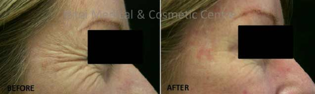 crows-feet-dermal-fillers-before-and-after
