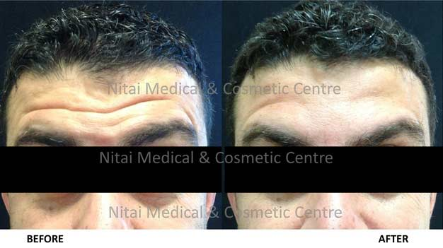 forehead-lines-dermal-fillers-before-and-after