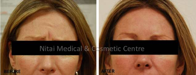 frown-lines-dermal-fillers-before-and-after-002