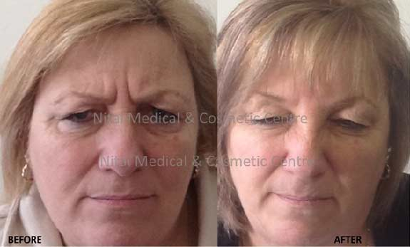 frown-lines-dermal-fillers-before-and-after